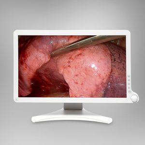 surgical display / endoscopy / full HD / 21.5
