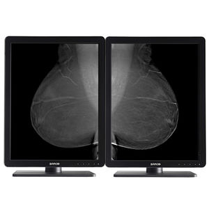 diagnostic display / mammography / radiology / 21.3in