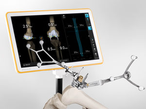 management software / surgical navigation / control / for knee surgery