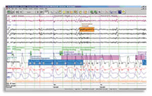 polysomnography software