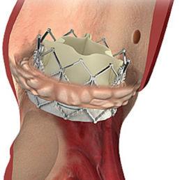 pulmonary valve bioprosthesis / bovine tissue / cobalt-chromium / sutureless