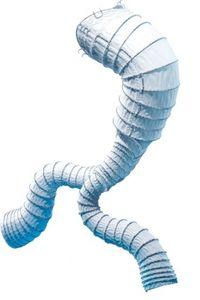 abdominal aorta stent graft / nitinol