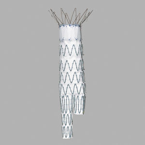 abdominal aorta stent graft / stainless steel / polyester
