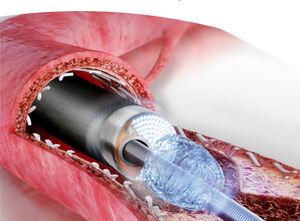 laser atherectomy catheter
