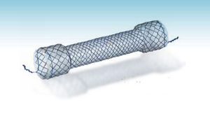 colonic stent
