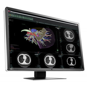 medical imaging display