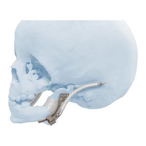 mandibular distractor