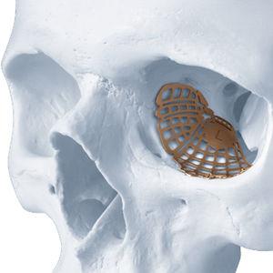 periorbital implant