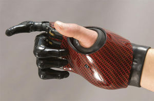 myo-electric partial hand prosthesis