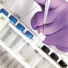 sample preparation reagent kit