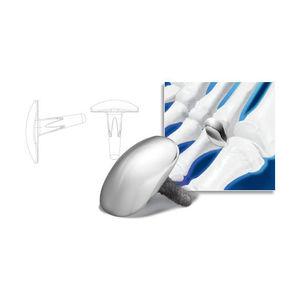metatarsophalangeal joint implant