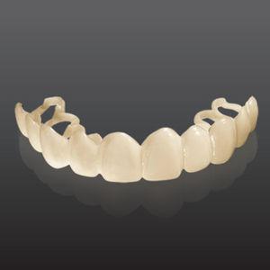 dental veneer material