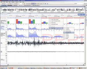 neurophysiological stimulation software