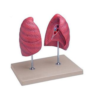 lung model / for teaching
