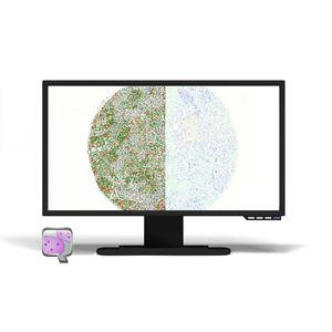 CISH software module / measurement / evaluation / for histopathology laboratories
