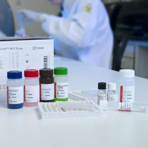 hepatitis C test kit / HCV / serum / plasma