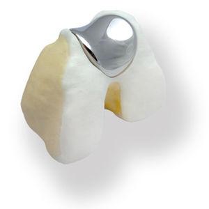 patello-femoral prosthesis