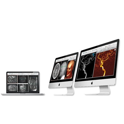 post-processing software / 3D viewing / diagnostic / for archiving