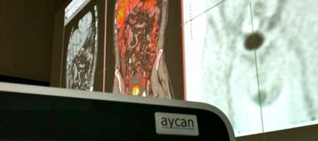 post-processing software module / multimodal image fusion / 3D viewing / medical imaging