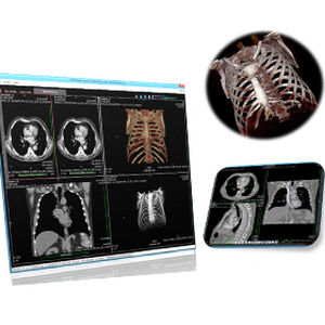 radiology software