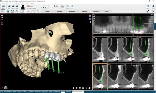 dental implantology software / 3D viewing / analysis / patient data management