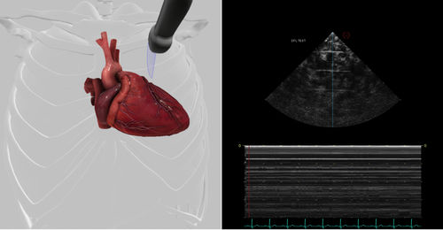 echocardiography software module / evaluation