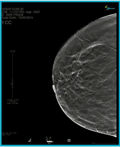 mammography software module