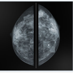 mammography software / visualization / patient data management / diagnostic