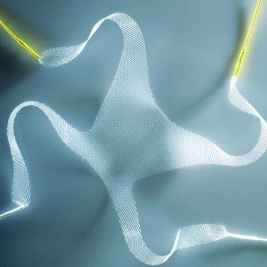 prolapse reconstruction mesh / cystocele / transobturator approach / women's