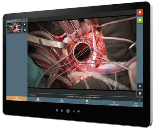 video recording software - SOFTNETA Medical Imaging