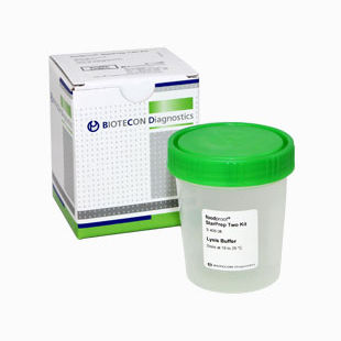 DNA extraction reagent kit