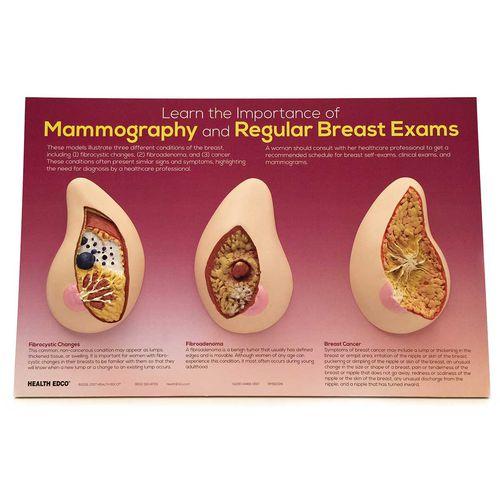 breast model / for teaching