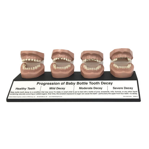 denture model / pathological / dental care / child