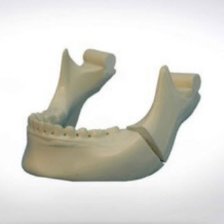 mandible model / bone / for teaching / for implantology