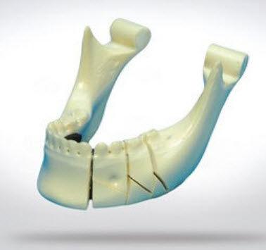 mandible model / bone / for teaching / pathological