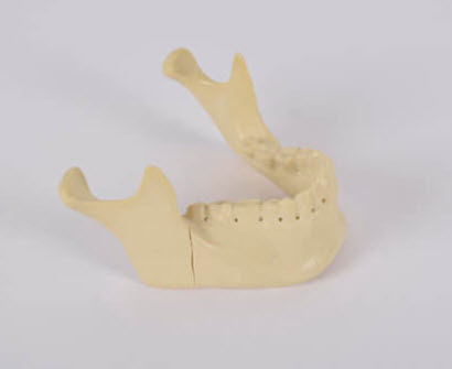 mandible model / bone / for teaching / pathological