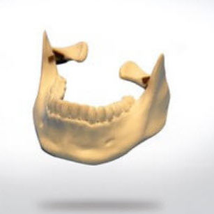 bone model / mandible / for teaching / craniotomy