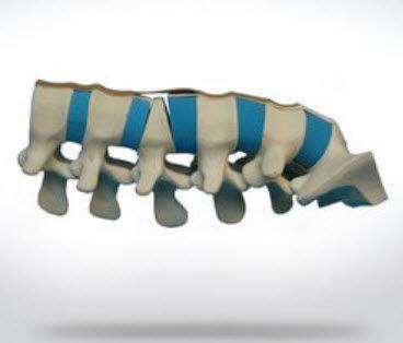 lumbar vertebra anatomical model / for teaching / spine surgery