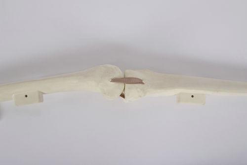 femur model / tibia / knee / bone