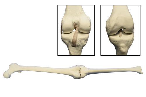 femur model / tibia / knee / joint