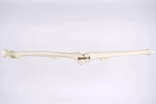 femur model / tibia / for teaching / for implantology