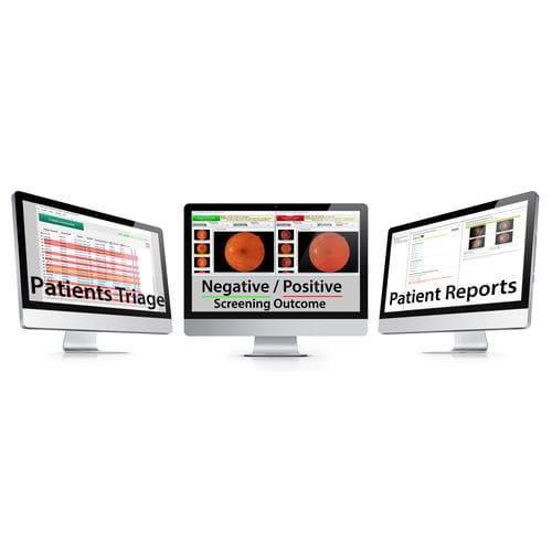 diabetic retinopathy detection software / image analysis / diabetes management / patient report management