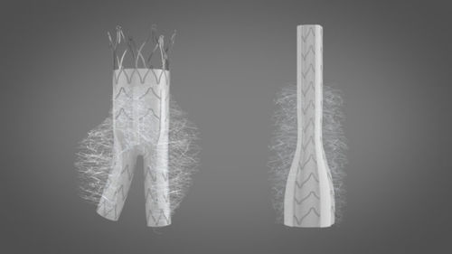 abdominal aorta vascular prosthesis / synthetic