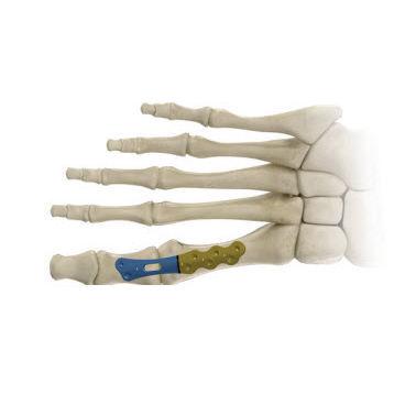 metatarsophalangeal joint arthrodesis plate
