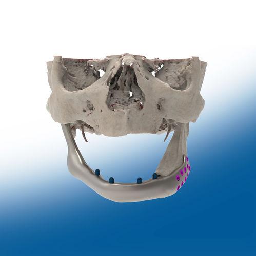 custom-made mandibular implant - Ortho Baltic Implants