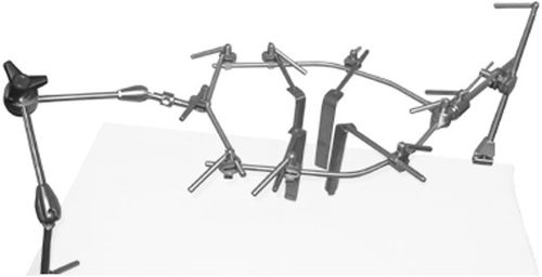 spinal retractor / surgical