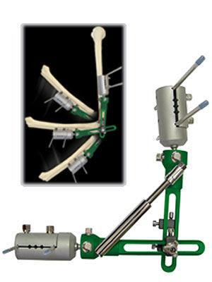 elbow external fixation system / tubular / adult