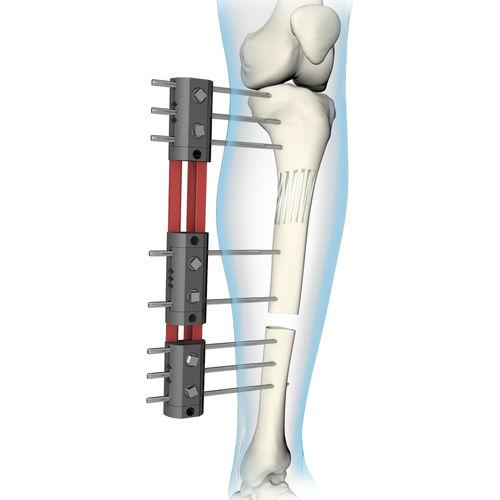 tibia external fixation system / femur / tubular / adult