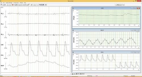 EEG software - Brain Products