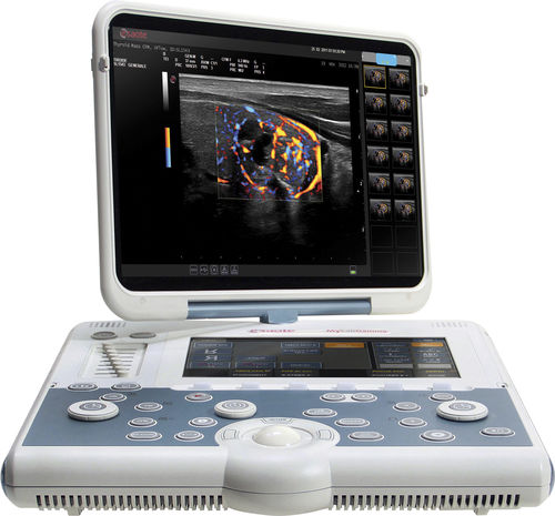 portable ultrasound system - Esaote